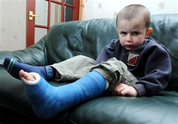Little John McAlpine broke his foot in a freak accident.