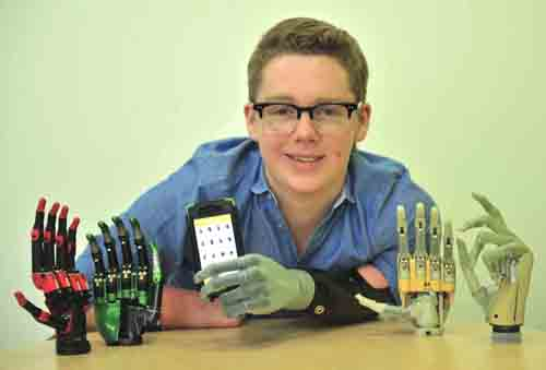First person in the UK to be fitted with the i-limb ultra revolution bionic hand.