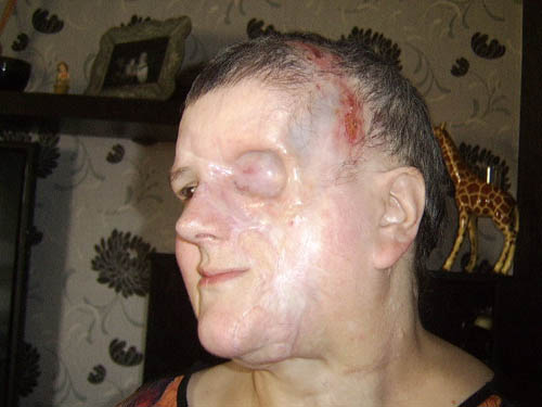 After saving her life, doctors removed an eye and much of the left side of Lou's face