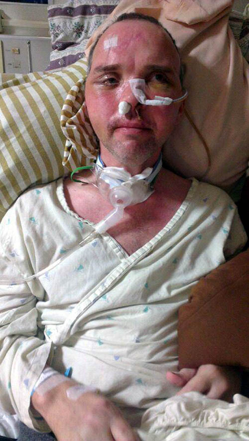 Kevin, pictured shortly after the accident, required 24-hour, round the clock care