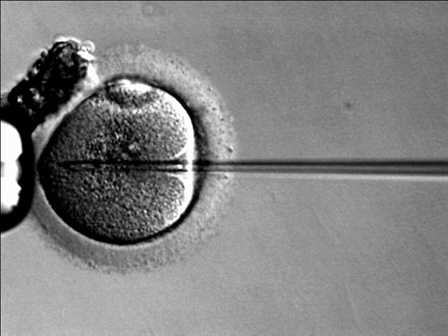 Every patient wanting IVF treatment was seen within 12 months