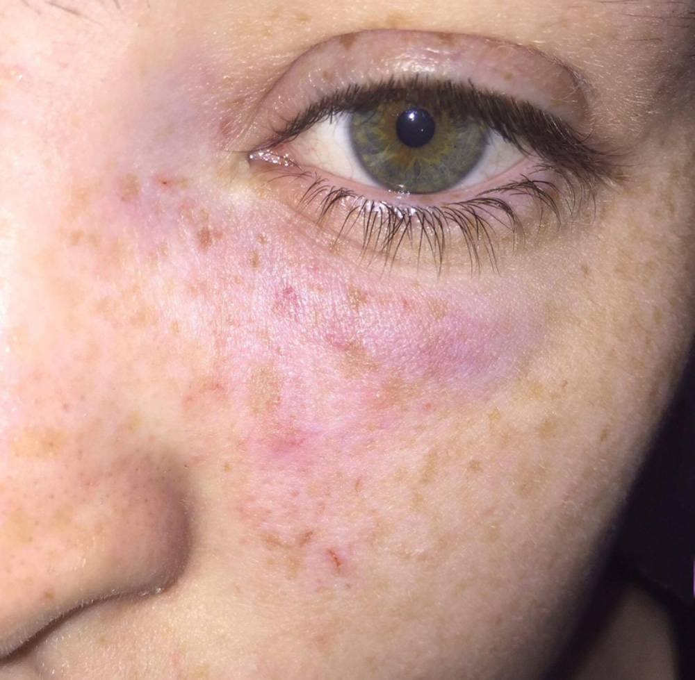 "One of the eggs struck near the jogger's left eye, causing bruising and drawing blood A WOMAN jogger suffered cuts and bruises to her face after vile yobs drove past and pelted her with eggs. The 21-year-old is trying to get in shape and build her confidence and went out at night so that as few people as possible would see her running. Now the boss of the gym helping the woman to get fit was so outraged he posted a message on social media challenging the ""f***wits"" responsible to a boxing fight. The victim of the attack in Hamilton, South Lanarkshire, was hit by two eggs. The first hit her in the chest and the second smacked into her face with enough force for the shell to cut her nose and cause brusing."
