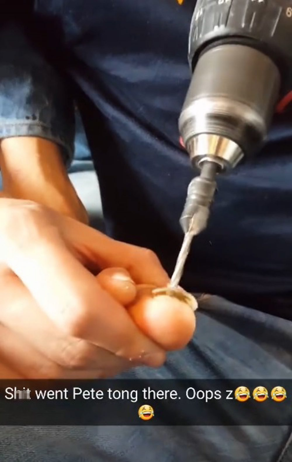 """A STOMACH-churning video shows the moment a Scot tried to remove his damaged big toe nail - with a power drill. Campbell Whyte and his pals had enjoyed a """"standard Sunday sesh"""" before deciding to do some DIY surgery. The labourer allowed his joiner friend, Lee Tarran, to use one of his work drills to try to make a hole in the nail. Campbell, 30, from Aviemore, Highland, planned to attach the nail - which was damaged playing football - by string to a door handle and pull it off. A gruesome clip of the operation shows the drill bit sliding around the nail before punching through. Unexpectedly, the nail then pops up - to a mixture of groans and cheers from a crowd of onlookers. The video is captioned: """"S*** went Pete Tong there. Oops."""" Although painful and obviously dangerous, the procedure was a total success as Campbell's big toe nail dropped off a few days later."""