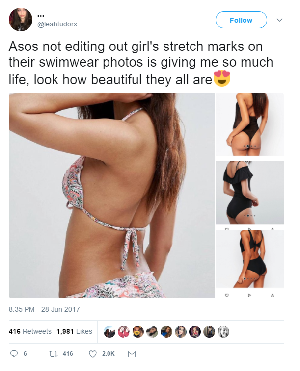 ASOS praised for showing models' 'beautiful' untouched stretchmarks