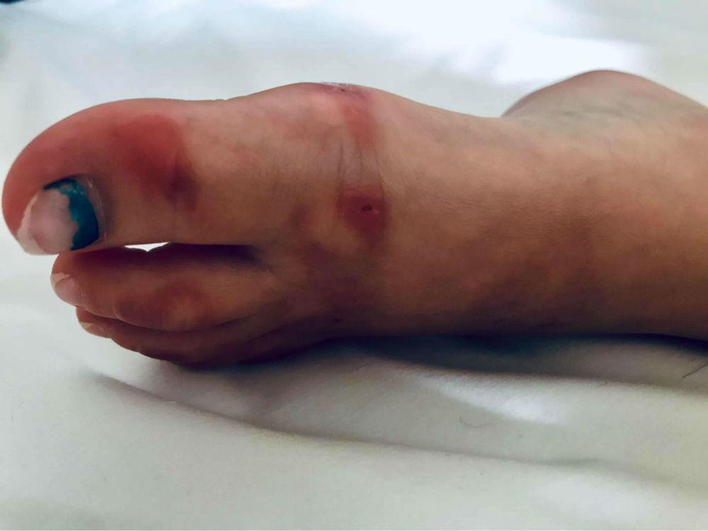 Chlorine burn to the foot