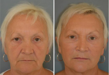 "Patient with ""puppet facelift"""