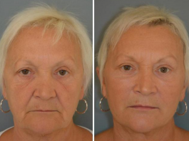 """Patient with """"puppet facelift"""""""