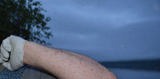 Midges on arm