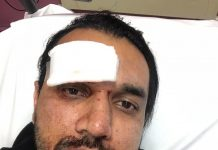 Taxi driver shares graphic images following racist attack