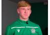 Hibs youngster Josh Doig | Hibs news