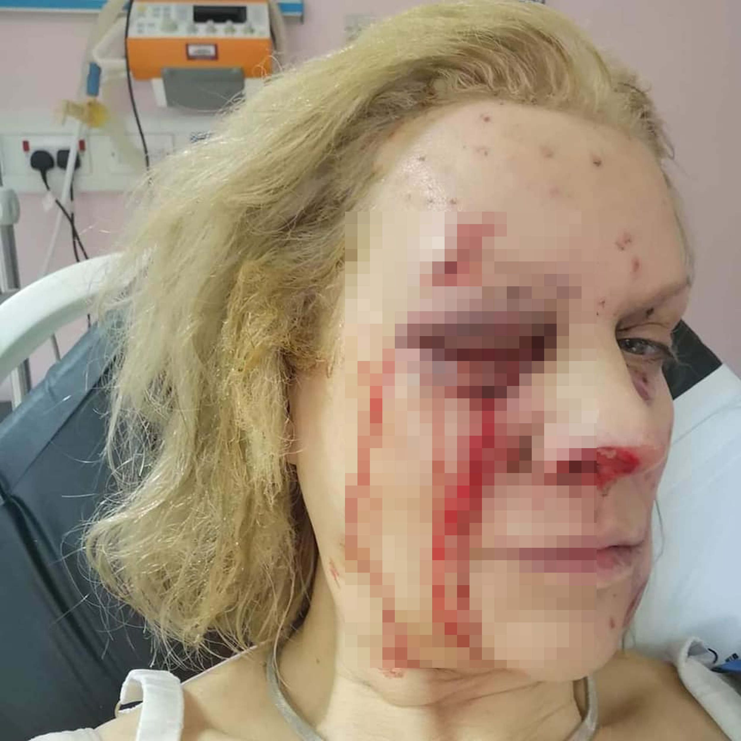 Amber Lewis after the accident- Viral News UK