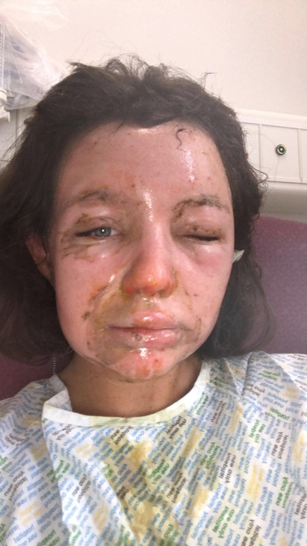 Grace Owen facial burns