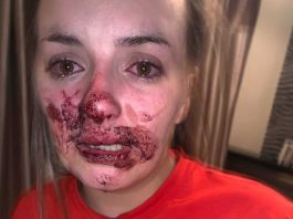 Brogan Shanley bloodied face