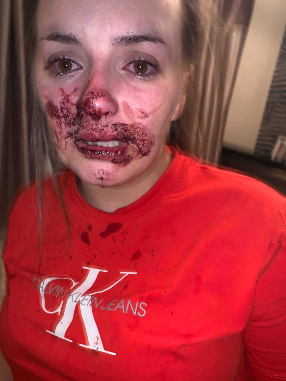 Brogan Shanley bloodied face