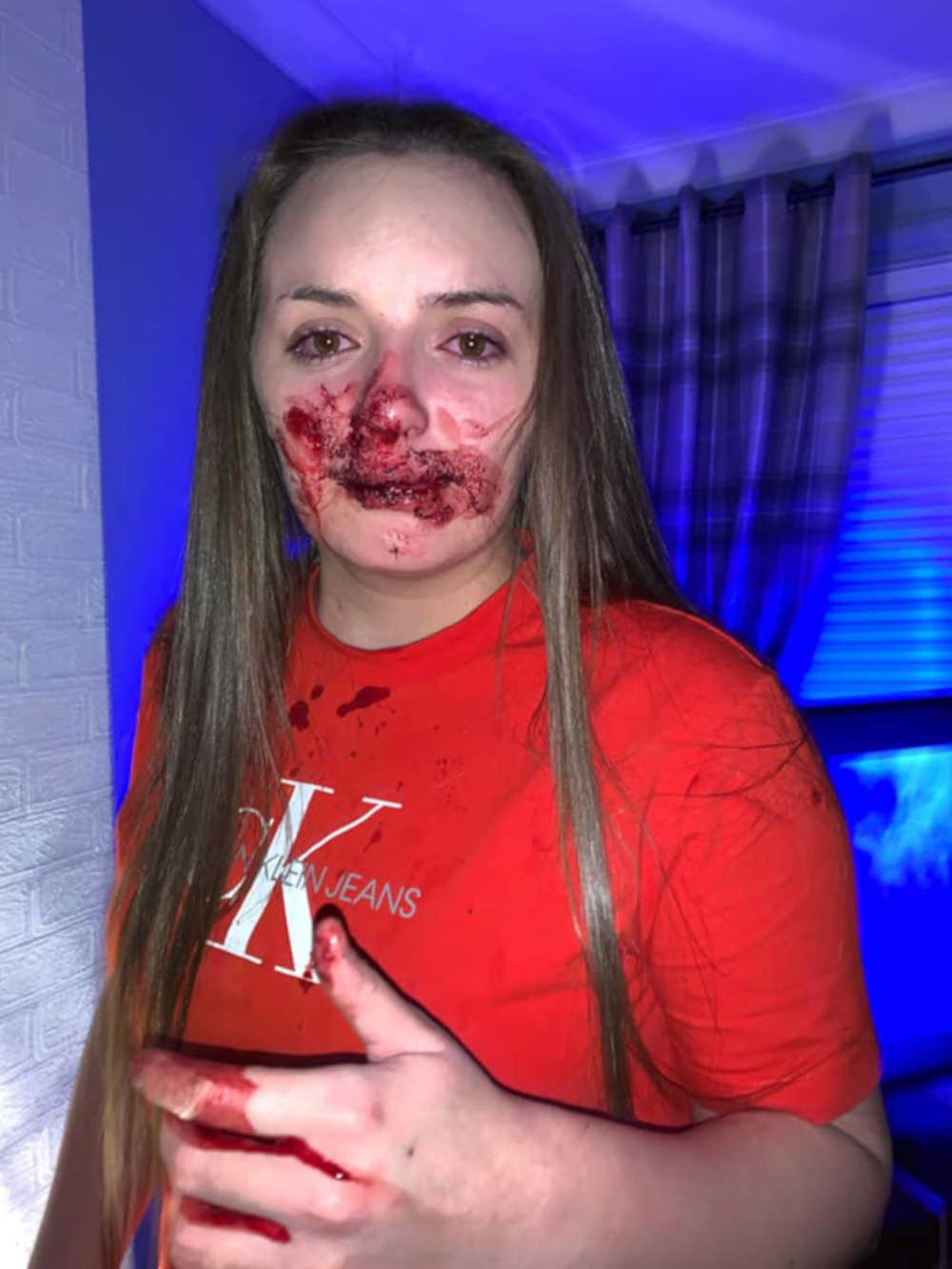 Brogan Shanley was repteadly kicked in the face