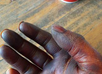 Iodine burns to hand - Health News Scotland