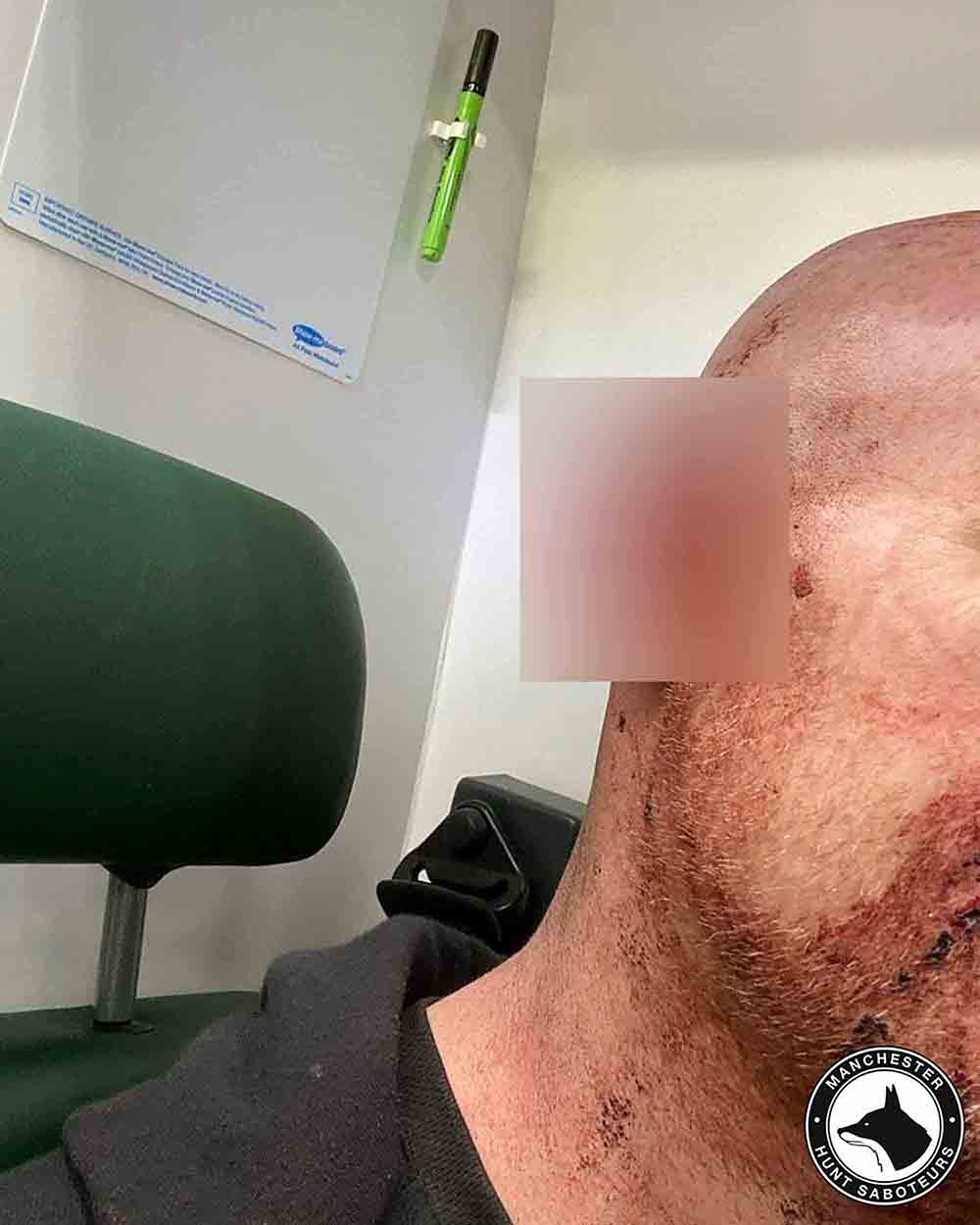 Graphic images show the injuries inflicted on a man who fought off badger baiters - UK News