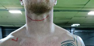 David Cox torso scars - Scottish Football News