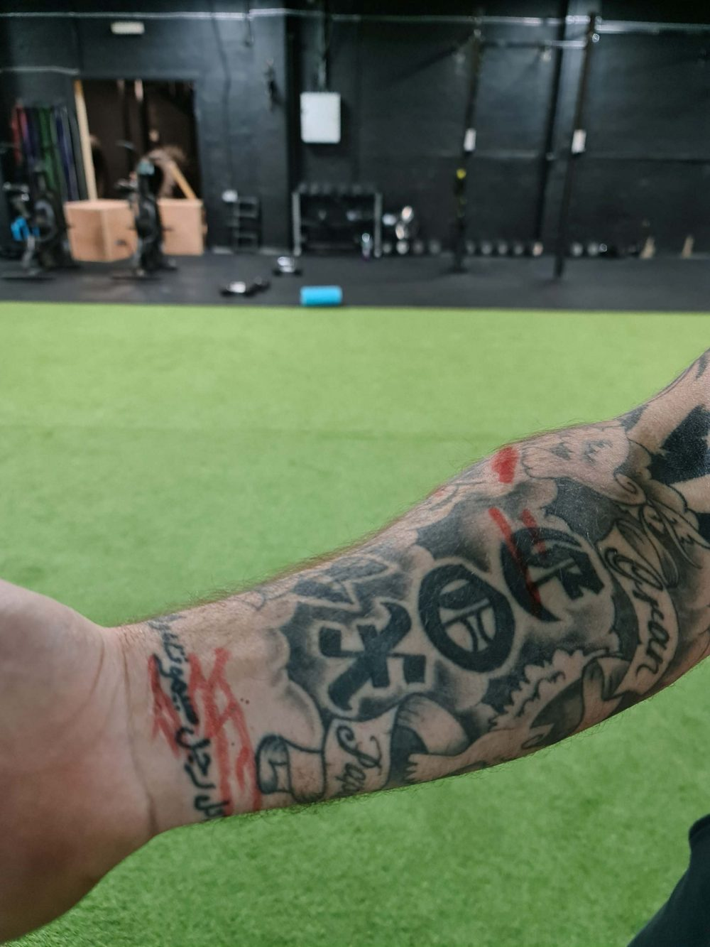 David Cox wrist scars - Scottish Football News