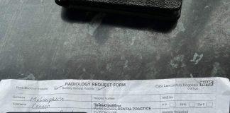 Connor McLaughlin x-ray form - Health News UK