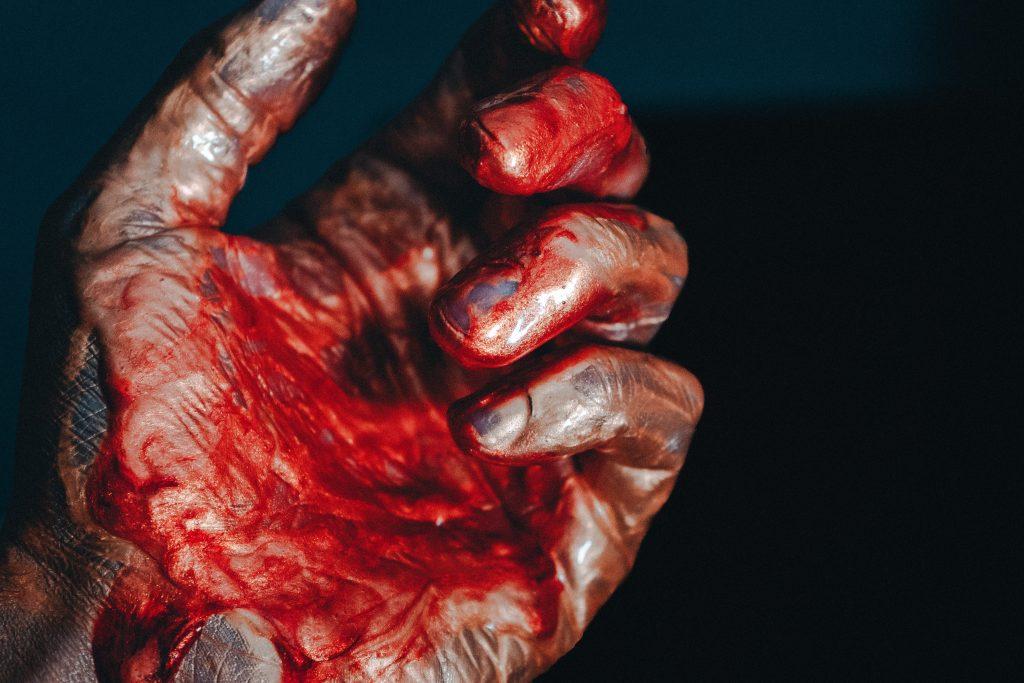 Bloody hand - scottish news
