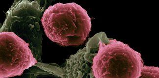 cancer cells - health news scotland